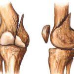 Alimentos para curar las fracturas
