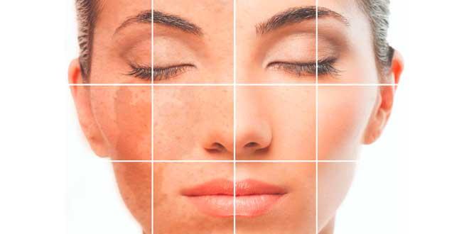 Vitamia C para la salud de la piel