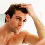 Alopecia caída pelo