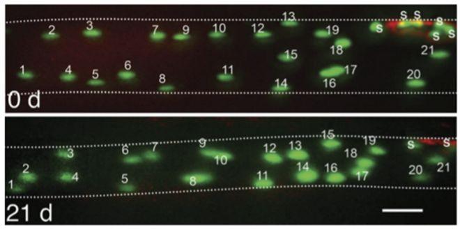 Presencia de mionúcleos en una miofibrilla muscular el día 0 (arriba) vs el día 21 (abajo) de inmovilización para producir atofia local