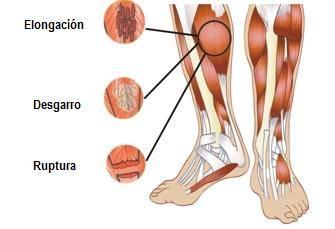ruptura-muscular