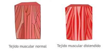 tejido-muscular