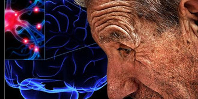 Ejercicio físico específico para el Parkinson