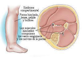 sintomas-sindrome-compartimental