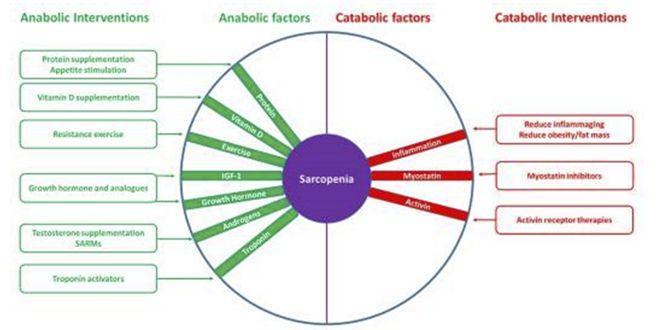 Factores e intervenciones para el control de la sarcopenia