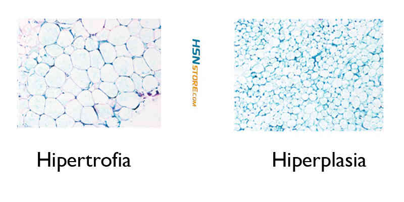 comparativa-hipertrofia-e-hiperplasia