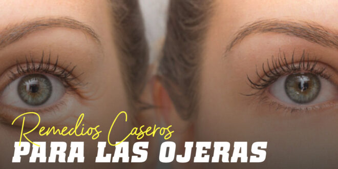 Ojo a las Ojeras: Te contamos los Mejores Remedios Caseros