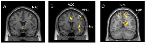 escaner-cerebro