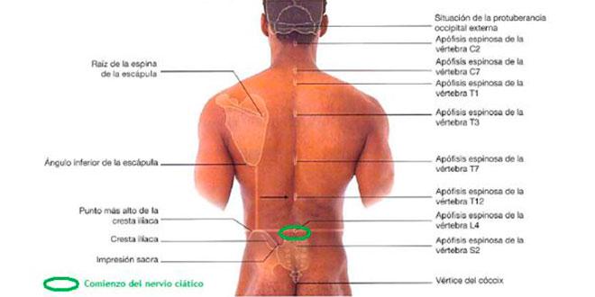 Dolor lumbar irradiado, hernias, ciática y lumbago: ¡¡el núcleo ...