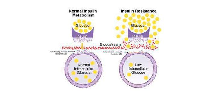 sensibilidad-a-la-insulina
