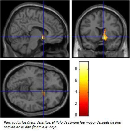 circuitos-neuronales