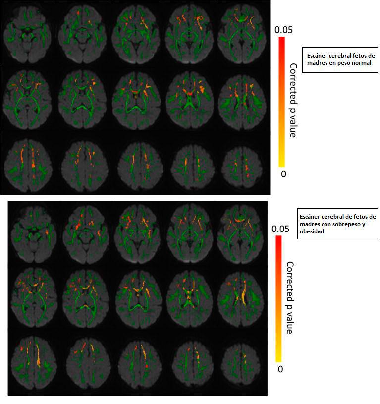 escaner-cerebral