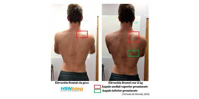 flexion-hombro