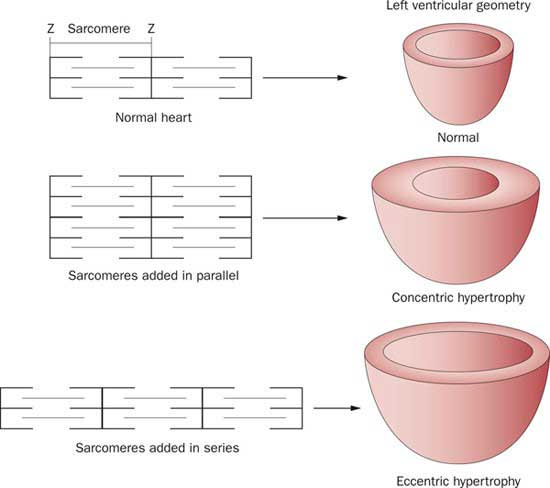 hipertrofia-cardiaca