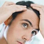 Mitos sobre la calvicie