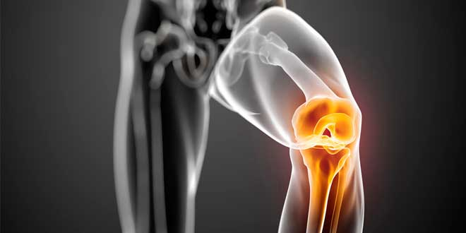 causas-dolor-rodillas