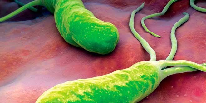 Ulcera de estómago