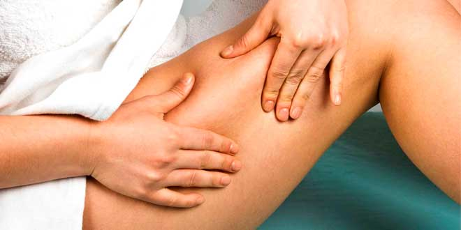 Celulitis: Qué es, por qué ocurre en mujeres, causas, cómo eliminarla