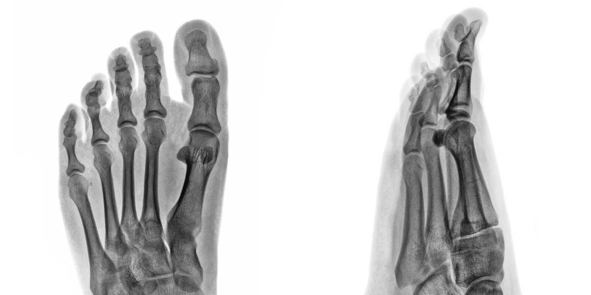 ¿Cómo beneficia el calcio a tus huesos?