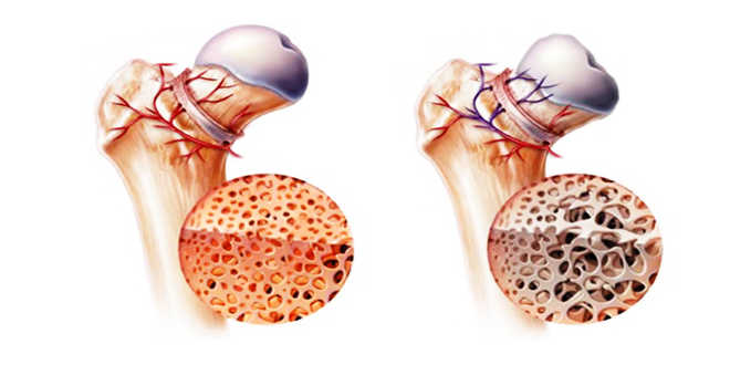 Hipercalcemia osso