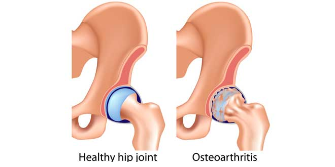 Tratamiento osteoartritis