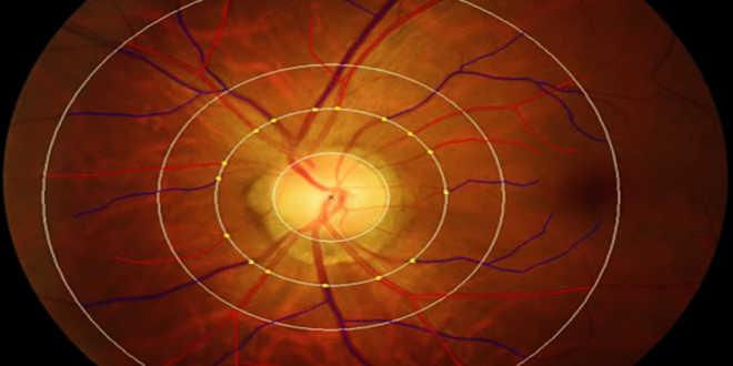 Efeitos da luteina na visão