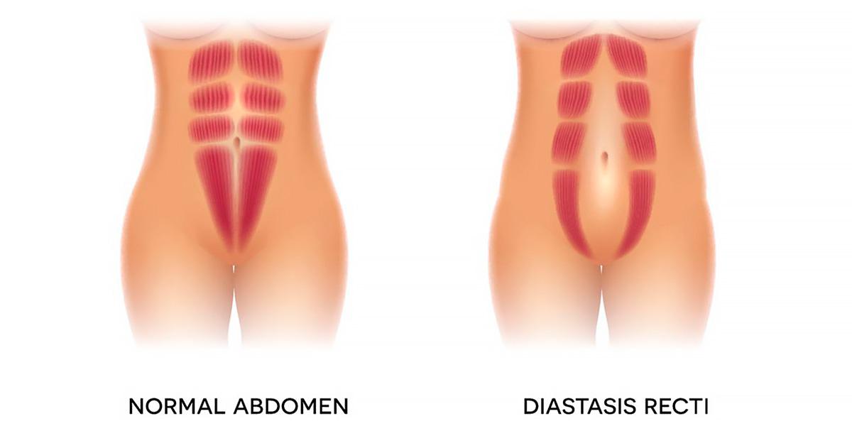 abdomen con diástasis vs abdomen normal