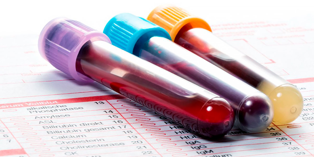 Analíticas de Sangre