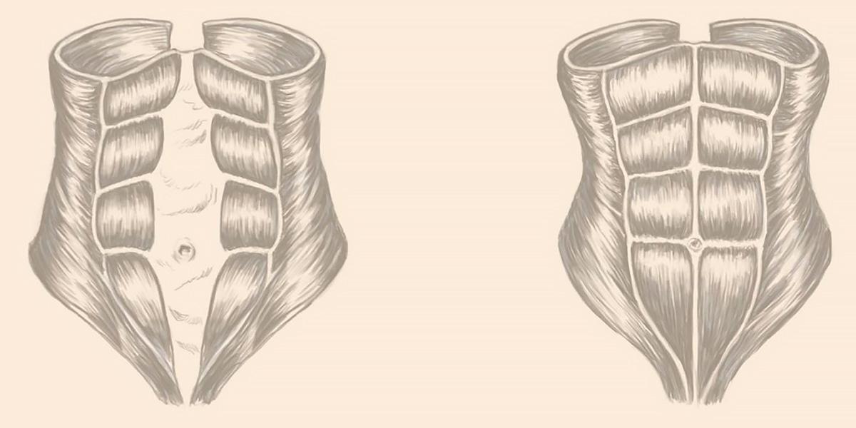 Separación del abdomen