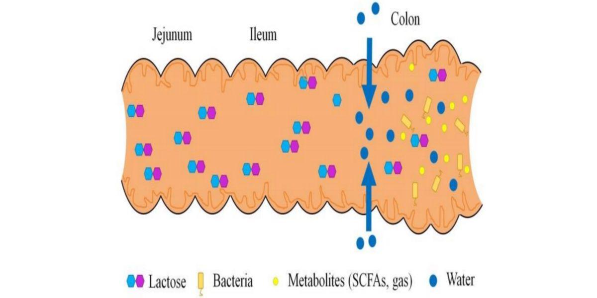 Metabolismo intestinal de la lactosa en un sujeto con intolerancia.