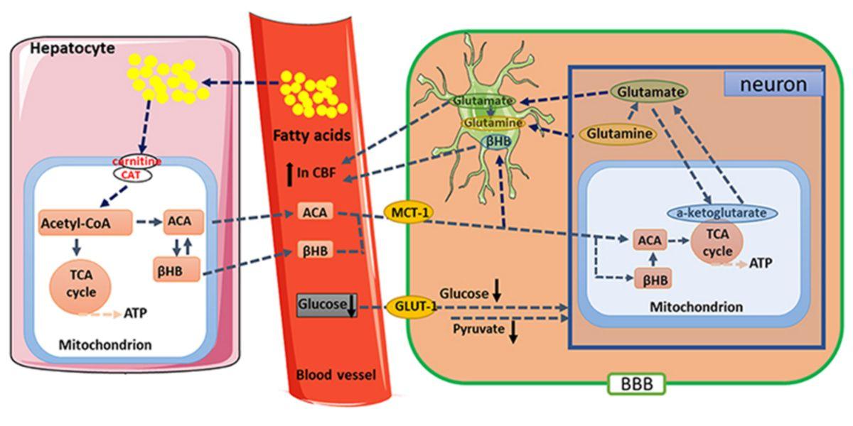 Metabolismo de las cetonas
