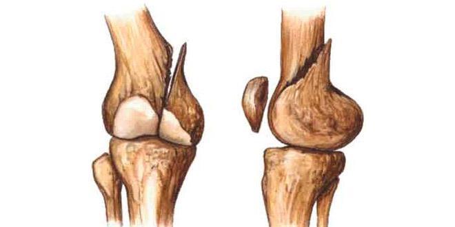 Alimentos para a cicatrização de fraturas ósseas