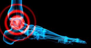 exercicios para fortalecer o tornozelo