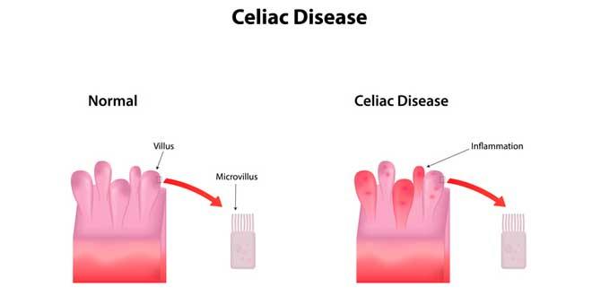 celíaca