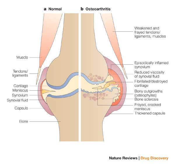 cartilagem osteoartrite