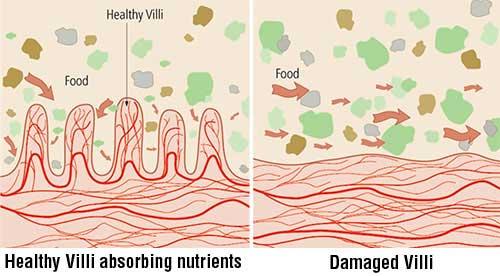 inflamação intestino
