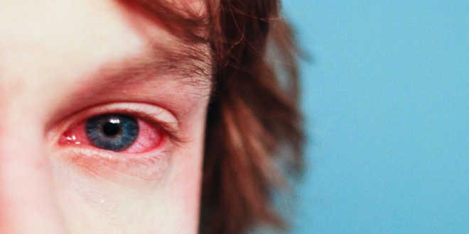 quercetina-alergia