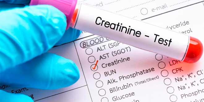 creatinina test