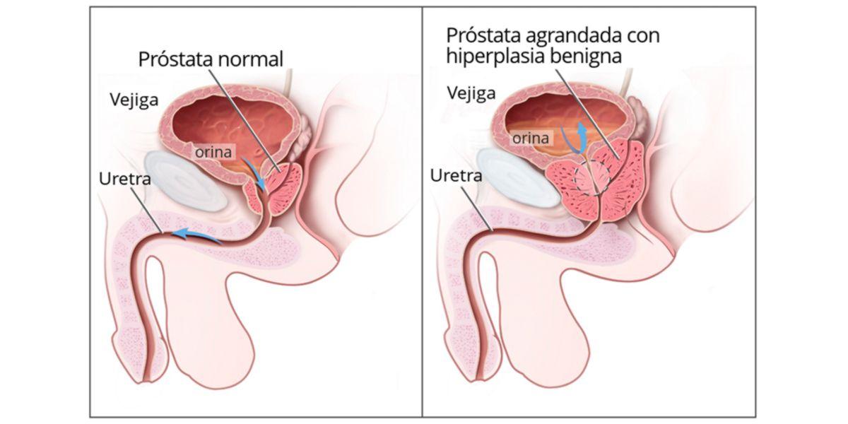 Hiperplasia Benigna da Próstata HBP