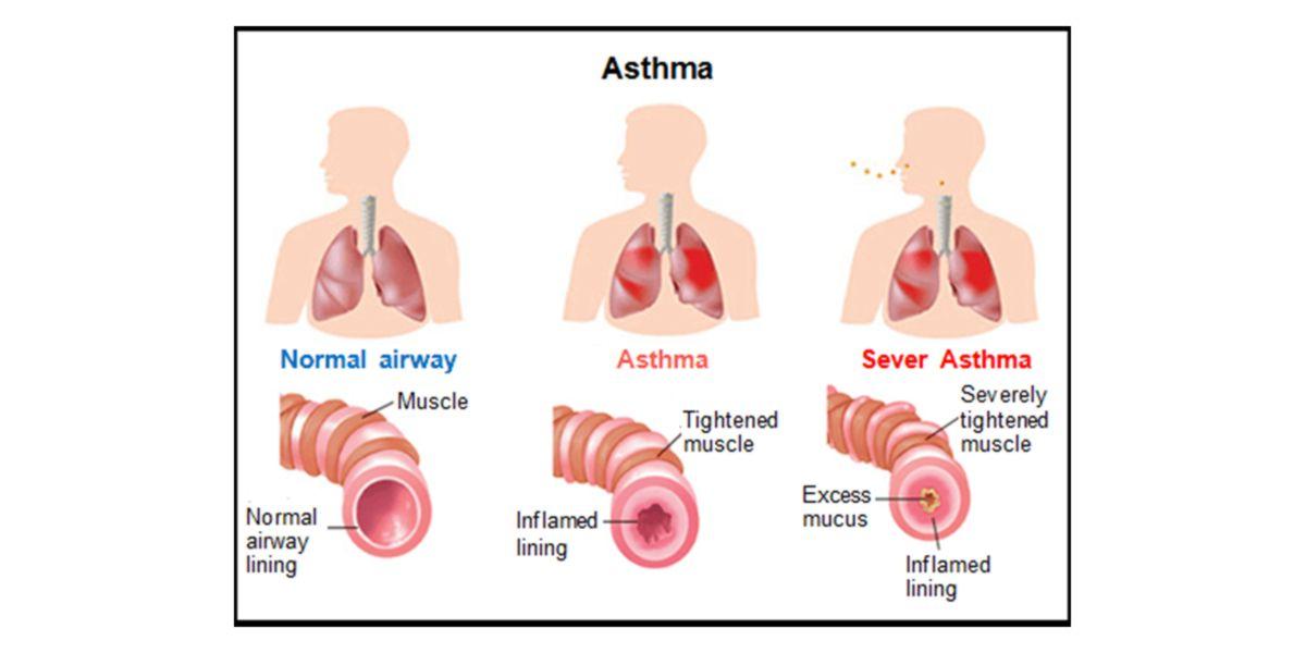 asma teofilina