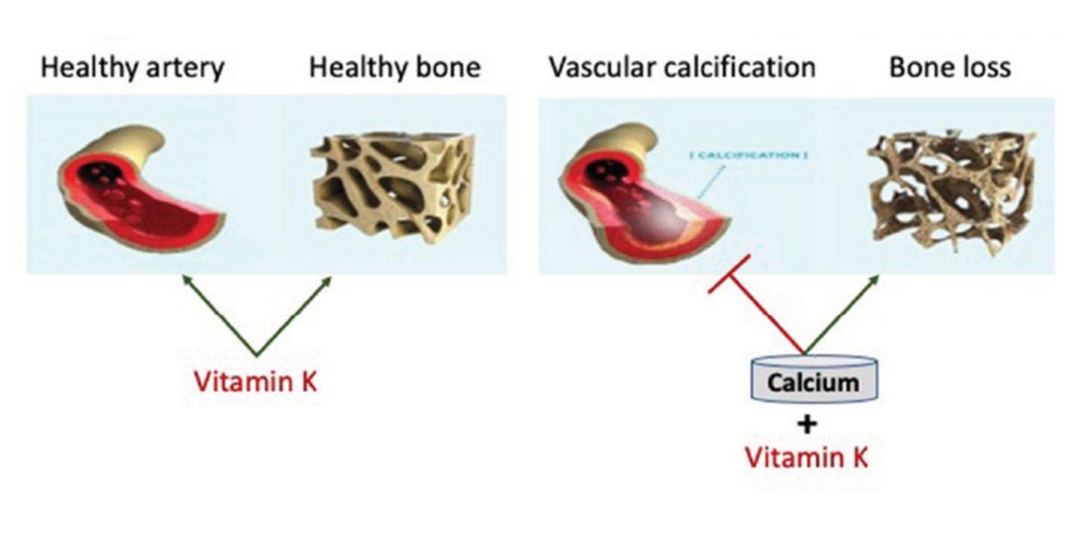 Saúde óssea e vascular