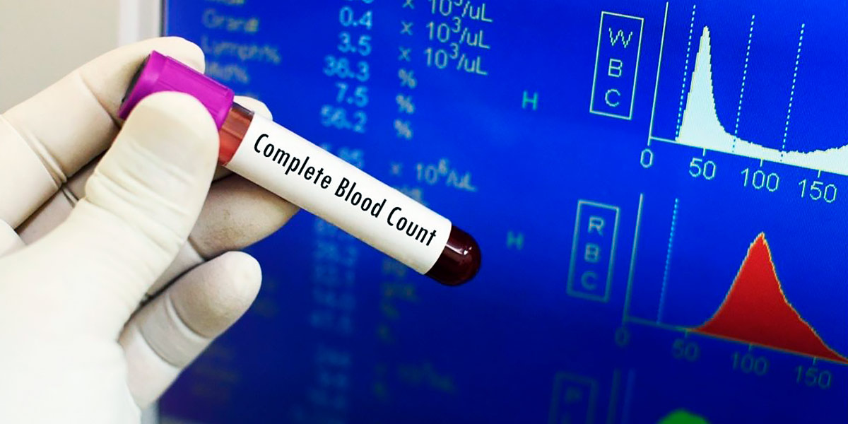 Teste sangue