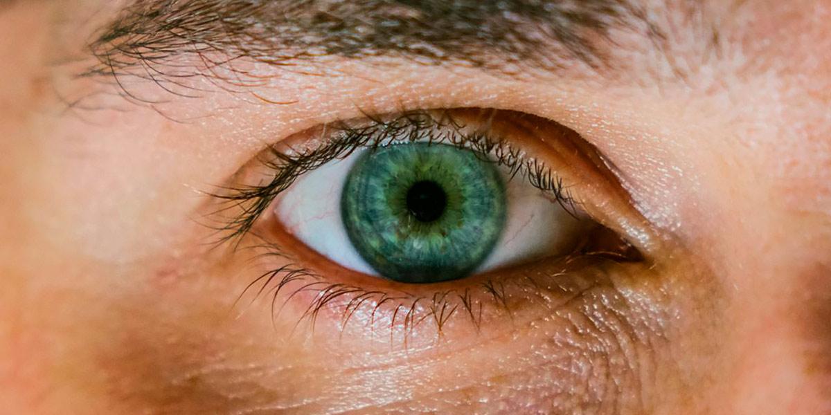 O que são as olheiras