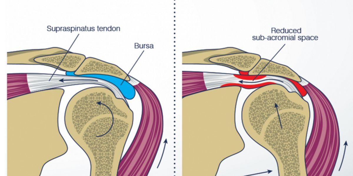 Tendinite e Bursite