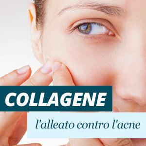 Collagene contro l'acne
