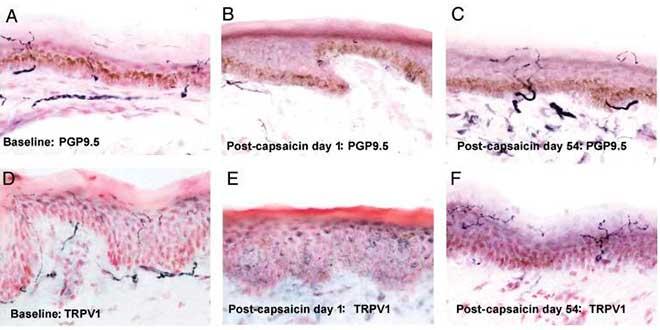 Effetti della capsaicina nel corpo