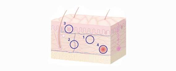 picnogenelo cura delle pelle