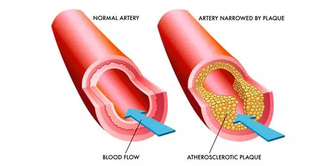 Arterie ostruite e la soluzione con gli Omega 3
