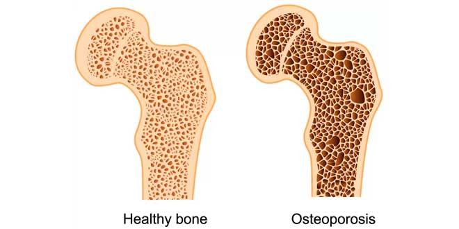 Come agisce l'osteoporosi