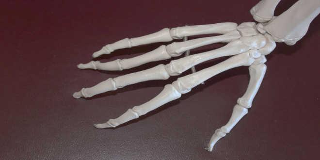 MSM per l'artrosi